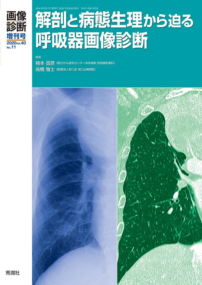 肥厚 部 両側 胸膜 尖 肺